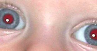 Come evitare effetto occhi rossi su foto scattata con Huawei P9
